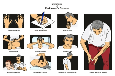 Symptoms of Parkinson's Disease infographic diagram including tremor or shaking small handwriting loss of smell constipation dizziness stooping and more for medical science education and health care