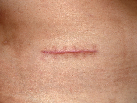 wound care: Scars from appendectomy  Stock Photo