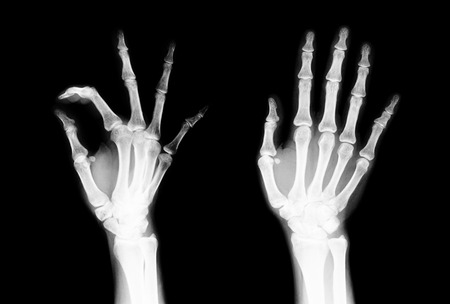 wrist pain: Black and white X-ray of the fingers to check for irregularities in the motion of the fingers are not. Stock Photo