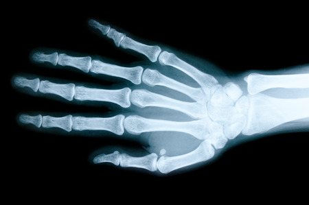 abnormalities: Right hand X-ray images to detect abnormalities of the hand.