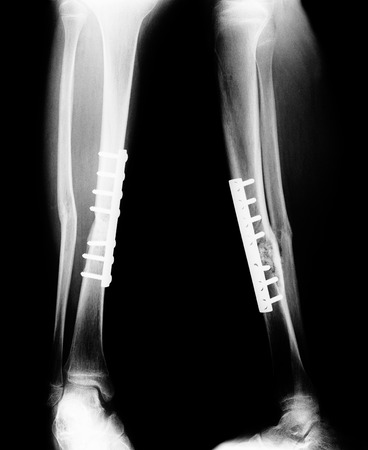 Monochrome film X-ray of the leg fracture.