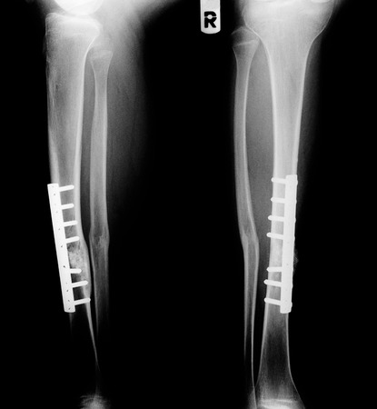 right side: Monochrome X-ray leg bone fracture of right side leg.