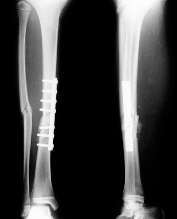 fractures: Monochrome film X-ray: femoral fractures treated by inserting steel bones attached.