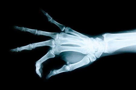 Right hand X-ray images to detect abnormalities of the hand.