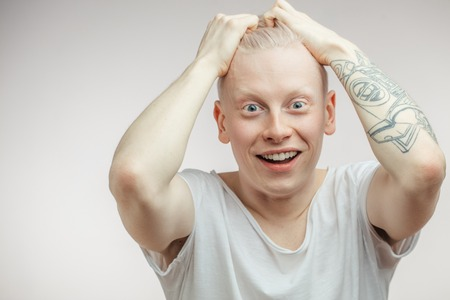 Emotional overjoyed surprised Albino male model with bugged eyes and open mouth.