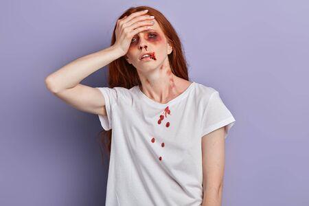 Triest huilende vrouw houdt haar hoofd met haar hand vast uit frustratie omdat ze een relatie heeft verbroken. Vrouw heeft hoofdpijn na het drinken van alcoholische drank