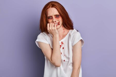 scared crying girl with bruises and wounds marks on her face after a case of gender violence, closeup portrait, isolated blue background, studio shot.