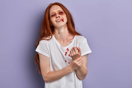 Beautiful woman holding her arm with pain and arm ache,wearing a white T-shirt. close up portrait, isolated blue background, studio shot Stock Photo