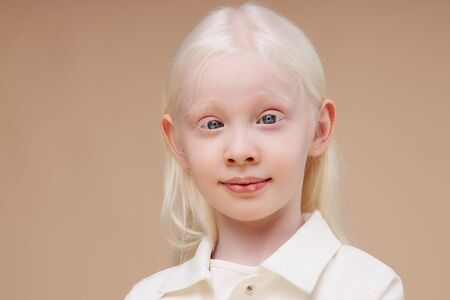 close-up portrait of little caucasian girl with albinism syndrome. abnormal deviations. unusual appearance. skin abnormality Banque d'images