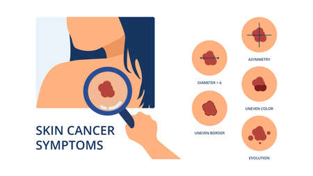 Skin cancer symptoms like big diameter, asymmetry, uneven color, uneven border and evolution next to hand of doctor detecting melanoma spot on skin of woman