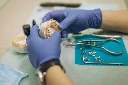 Dentist is holding tweezers for dental ceramic veneers and crowns