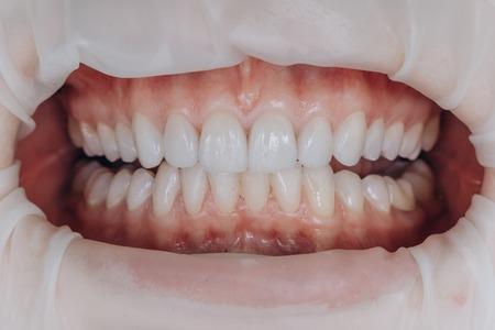 Corone frontali in ceramica finite. Faccette dentali da 8 unità.