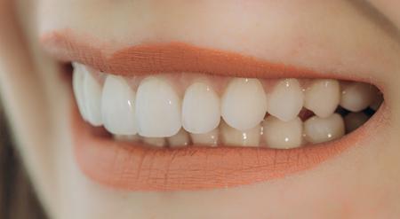 Hollywood-Lächeln mit Porzellankronen und Veneers Standard-Bild