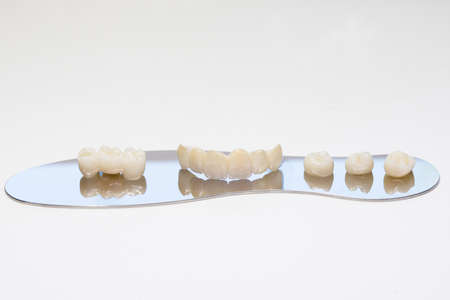 Zirconium tooth crown. Isolate on background. Aesthetic restoration of tooth loss. Ceramic zirconium in final version. Metal Free Ceramic Dental Crowns.