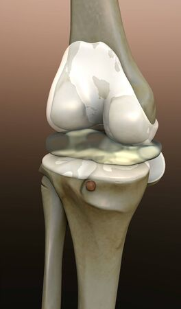 knee, 3d rendered knee illustration, pain illustration knee side, 3d illustration knee side, Knee x-ray, animation of human knee disease