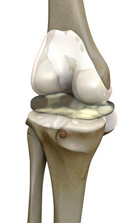 human joint destruction, 3d rendered knee illustration, pain illustration knee side, 3d illustration knee side,