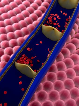 cholesterol in the artery