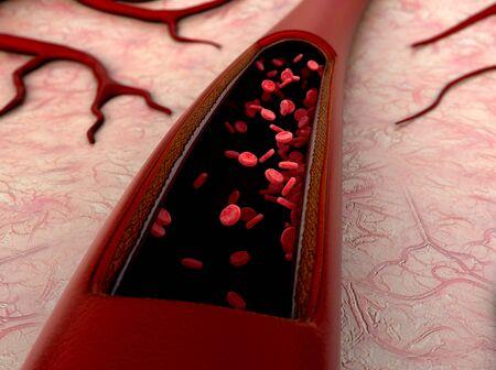 vasos sanguíneos, eritrocitos, arteria, arteria que se muestra con una sección cortada, un coágulo de sangre en los vasos, célula de grasa en la sangre, dentro del vaso sanguíneo, Render 3D de alta calidad de glóbulos Foto de archivo