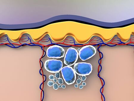 illustration of human leather anatomy, fat cells and vein, fat cells under skin Banque d'images - 131245524