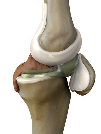 pain illustration knee side, 3d illustration knee side, Knee x-ray 版權商用圖片