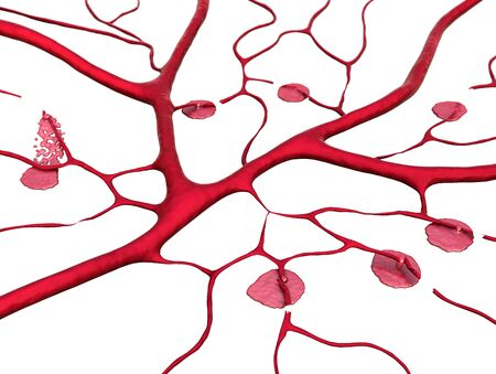 3D illustration of circulatory system, disease, of Capillary, blood vessel, blood loss