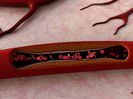 artery shown with a cut out section, High quality rendering with original textures and global illumination, Contraction of blood vessels