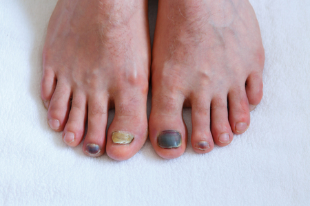 Human male foots with bruised black on toe nails on white background. medicine concept