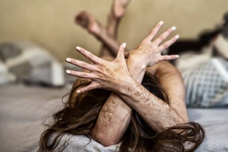 crossed arms of a Woman with heavy Cuts and scars of self-mutilation in frustration, self-abusing, Borderline personality disorder.
