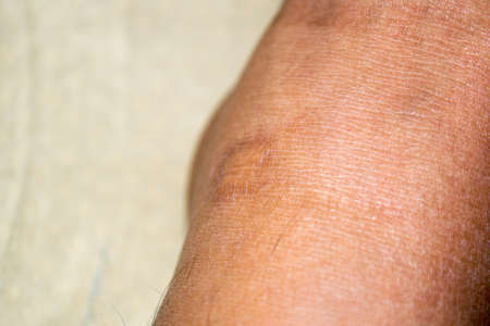 Close up image of a keloid scar (Hypertrophic Scar) on a mans' ankle Imagens