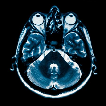 Horizontal section of human brain MRI scan photo