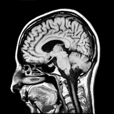 ct scan: Vertical section of human brain MRI scan
