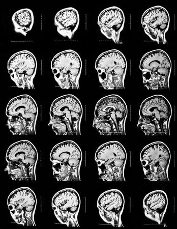 resonancia magnetica: Secuencia de secciones verticales de un cerebro humano - escaneo MRI