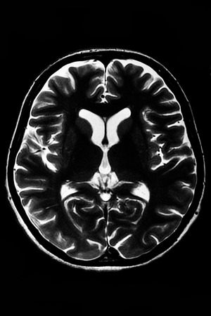 scan: Horizontal section of a human brain - MRI scan Stock Photo