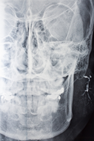 part of  negative x-ray film of Man Stock Photo