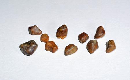gallstones: Gallstones