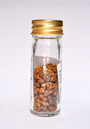 Gallstones in specimen jar from single operation.