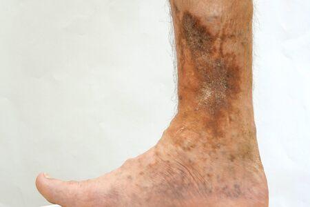 Choroba skóry człowieka. Stopa osoby dotkniętej dermatologiczną chorobą skóry z bliznami, owrzodzeniami i plamami pigmentacyjnymi. Być może to żylaki na nodze. Zbliżenie. Zdjęcie Seryjne