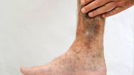 Illness of the human skin. Person s hands touch scars, ulcers, peeling and age spots, possibly after varicose veins or thrombosis on his leg. Close-up.