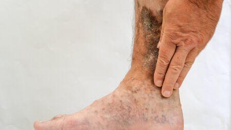 Krankheit der menschlichen Haut. Die Hände der Person berühren Narben, Geschwüre, Peeling und Altersflecken, möglicherweise nach Krampfadern oder Thrombosen am Bein. Nahaufnahme.
