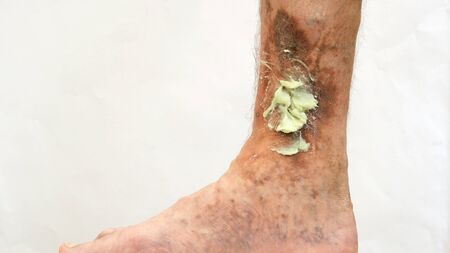 Human skin disease. Ointment on scars, ulcers, peelings and age spots on his foot. Perhaps this is varicose veins or thrombosis on the leg. Close-up. Stock Photo