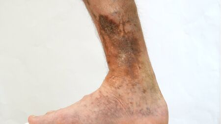 Human skin disease. Person foot that is affected by dermatological skin disease with scars, ulcers, peeling and pigment spots. Perhaps this is varicose veins or thrombosis on the leg. Close-up. Stock Photo