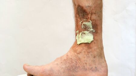 Human skin disease. Ointment on scars, ulcers, peelings and age spots on his foot. Perhaps this is varicose veins or thrombosis on the leg. Close-up.