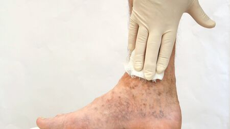 Human skin disease. Sanitary napkins on scars, ulcers, peelings and age spots on his foot. Perhaps this is varicose veins or thrombosis on the leg. Close-up.