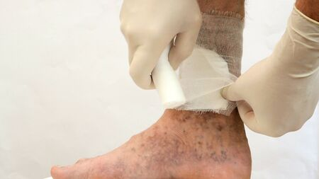 Human skin disease. Human hands swathe with bandage, around scars, ulcers, peelings and age spots, possibly due to varicose veins or thrombosis on his leg. Close-up.
