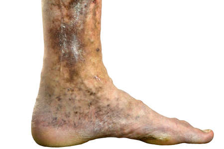 Sore spotty leg of person, suffering from blockage of veins, ulcers, dermatitis, eczema or other infectious diseases of dermatology. Cut out. Isolated on white. Close-up. Indoors.