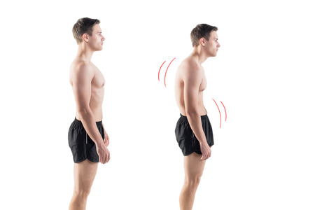 Man with impaired posture position defect scoliosis and ideal bearing Imagens