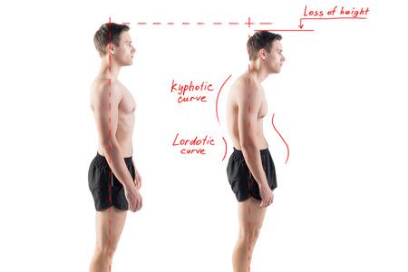 good posture: Hombre con escoliosis postura deteriorada posici�n defecto y rodamiento ideales Foto de archivo