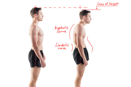 Man with impaired posture position defect scoliosis and ideal bearing Stockfoto