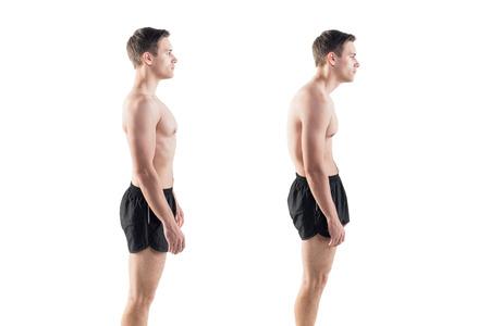 buena postura: Hombre con escoliosis postura deteriorada posición defecto y rodamiento ideales Foto de archivo