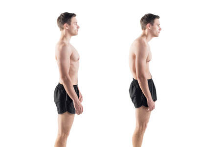 sedentary: Man with impaired posture position defect scoliosis and ideal bearing Stock Photo
